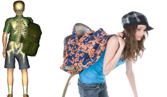 Especialistas da Unifesp apontam os riscos das mochilas pesadas