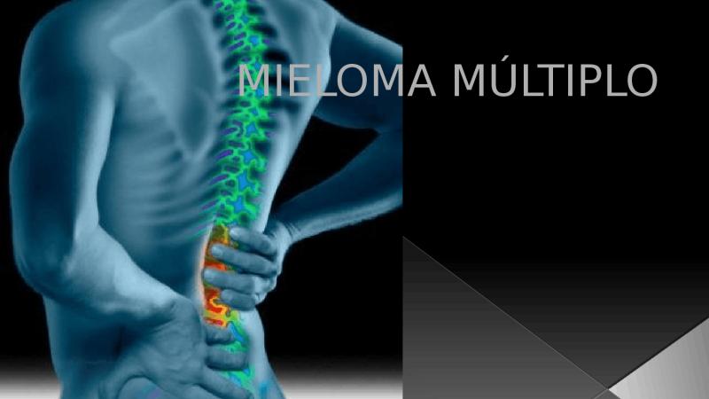 Medicamento para tratamento de mieloma múltiplo, Bortezomibe entra para o rol oferecido pelo SUS